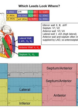 12 Lead ECG Reference Chart