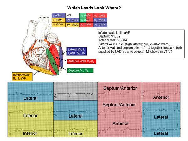 12 Lead ECG Reference Chart – Cardiovascular Nursing Education Associates